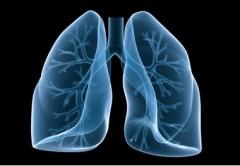 insuffisance_respiratoire.jpg